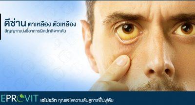 ดีซ่าน ตาเหลือง ตัวเหลือง ระวัง! สัญญาณบ่งชี้อาการผิดปกติจากตับ